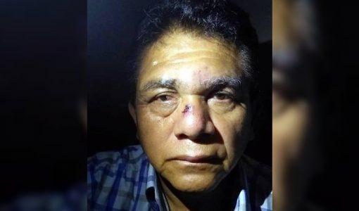 Periodista es agredido por hijo del alcalde en Chincha